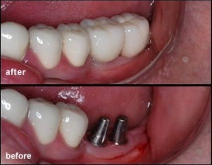 Best Dental Implants Clinic in Mumbai