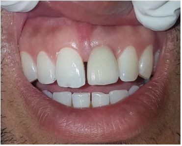 Best Dental Implant Clinic in Mumbai