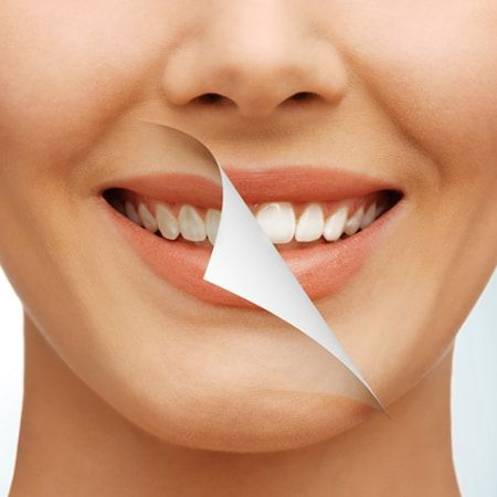 Dentist In Nariman Point